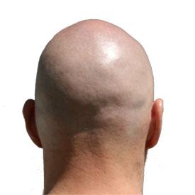 bald-head